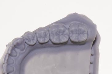 macro mandibola